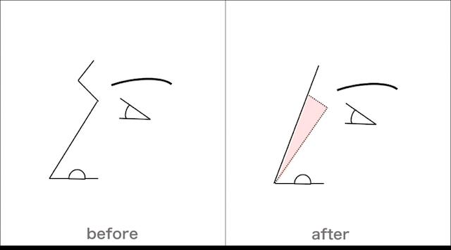 鼻の整形の見分け方